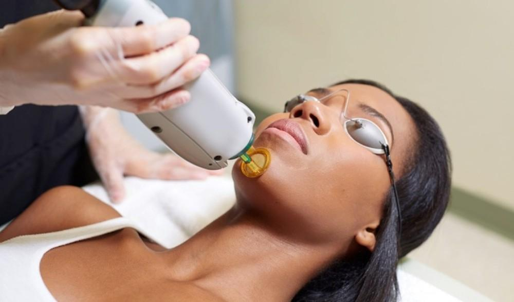 lapiel laser center - wellness - laser hair removal - chicago, illinois