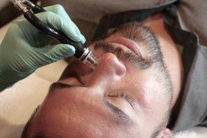 Lapiel Laser Center | Groom the Groom | men's grooming